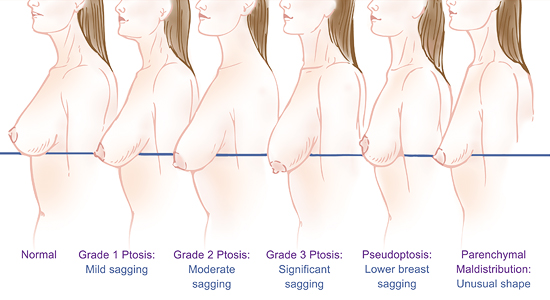 new jersey breast lift diagram-ptosis