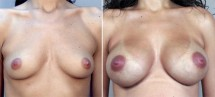 Breast Enlargement (Augmentation) Patient 8