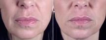 Facial Fillers Patient 5 – Perlane