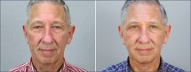 Male Facelift Patient 2