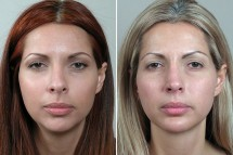 Rhinoplasty Patient 9