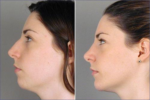 Rhinoplasty & Chin Implant Patient 8
