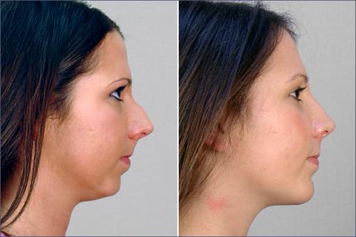 Rhinoplasty & Chin Implant Patient 4