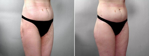 Thigh & Buttocks Lifting Surgery Patient 1