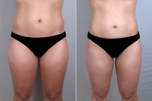 Liposuction Patient 14