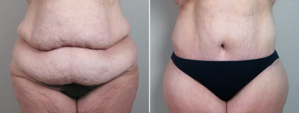 Post Bariatric Plastic Surgery New Jersey Parker Center For