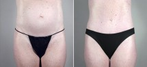 Classic Tummy Tuck Patient 9