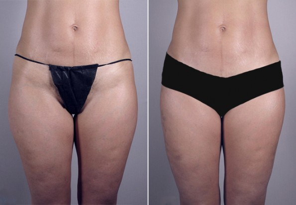 Rapid Recovery Patient – Liposuction 2