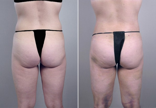 Rapid Recovery Patient – Liposuction 3