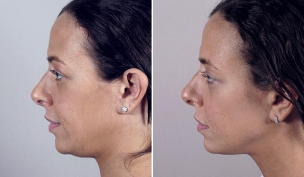 Rapid Recovery Patient – Neck Contouring