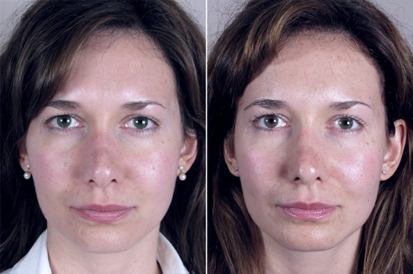 Rapid Recovery Patient – Rhinoplasty