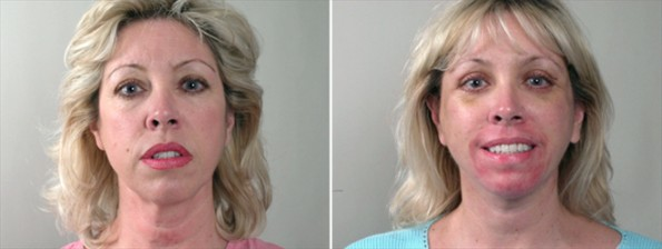 Rapid Recovery Patient – Facial Rejuvenation