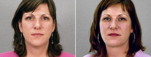 Rapid Recovery Patient – Neck Contouring 2