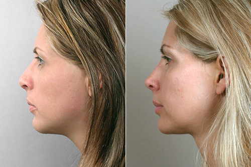 Rapid Recovery Patient – Rhinoplasty & Chin Implant