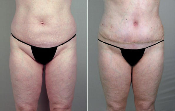 Rapid Recovery Patient – Lipoabdominoplasty