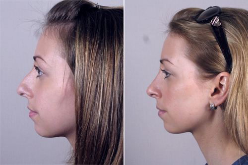 New Jersey Rhinoplasty Parker Center For Plastic Surgery