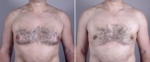 Gynecomastia Reduction Patient 12