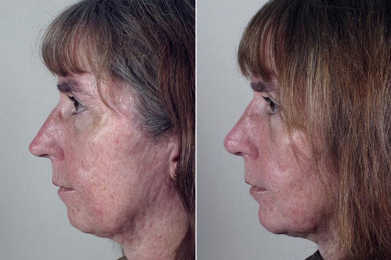 rhinoplasty-21c