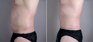 New Jersey Abdominoplasty for Men Image