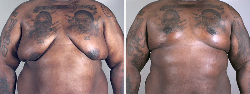 Male Chest Lift Options Parker Center For Plastic Surgery