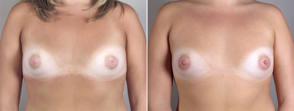 Inverted Nipple Correction Patient 4