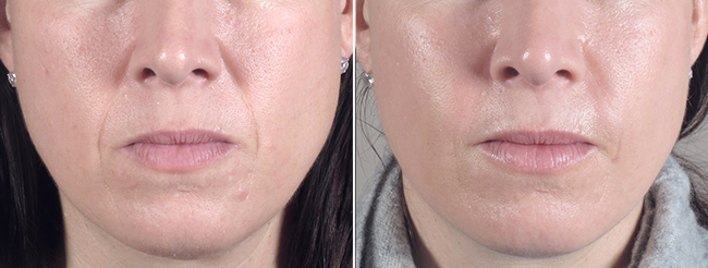 New Jersey Facial Fat Transfer