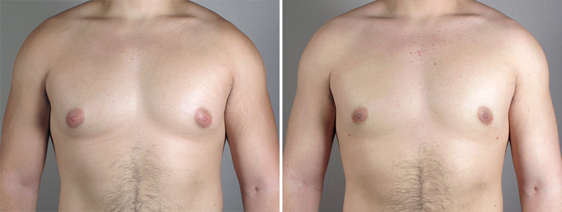 Breast Reduction for Men New Jersey Photo