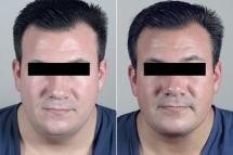 Male Neck Contouring Patient 6