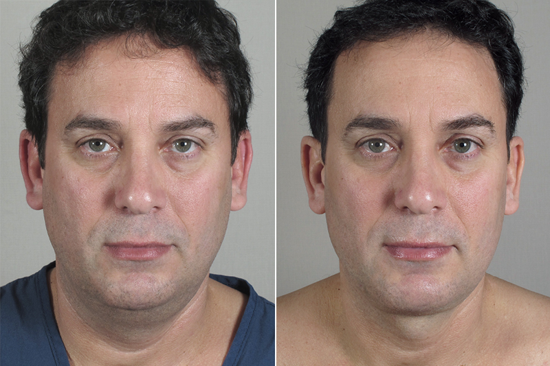 Picture of facial liposuction theme, very