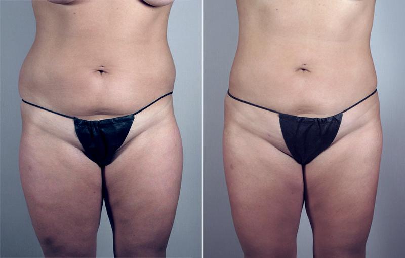 Abdominal Liposuction Patient 10 Parker Center For