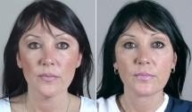 Neck Liposuction Patient 5