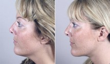 Neck Liposuction Patient 7