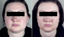 Neck Liposuction Patient 8