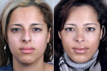 Rhinoplasty & Chin Implant Patient 29