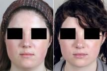 Neck Liposuction Patient 9