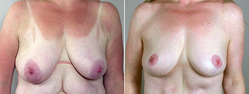 Breast Lift New Jersey