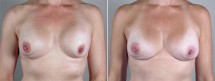 Removal & Replacement of Implants Patient 9