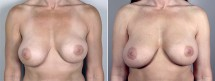 Removal & Replacement of Implants Patient 12