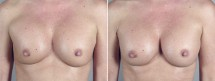 Removal & Replacement of Implants Patient 8