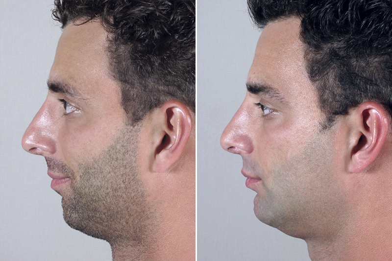 Chin Augmentation for Men Before and After