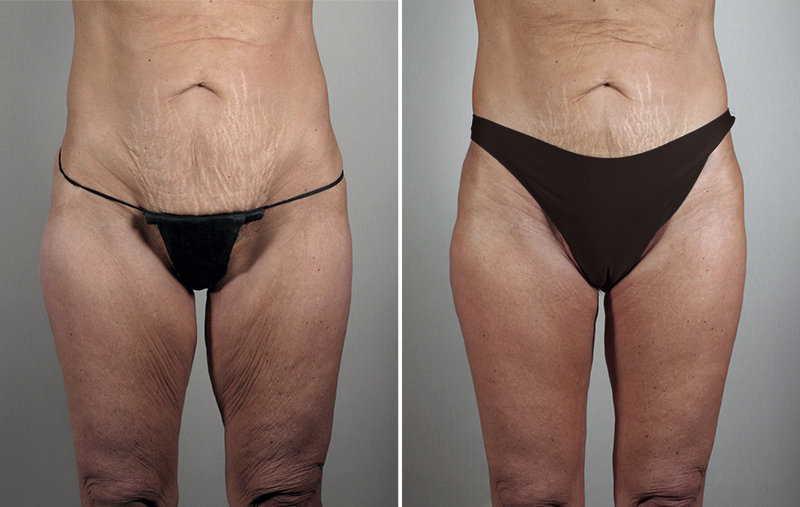 Thigh Lifting Surgery Patient 11 Parker Center For