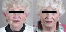 Face Lift Patient 21