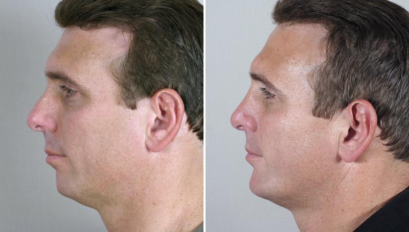 Male Chin Augmentation