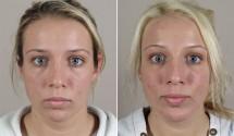 Neck Liposuction & Chin Implant Patient 11