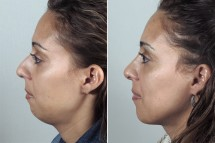 Patient of the Month for May 2012 – Chin Augmentation