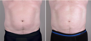 /men/male-breast-reduction-new-jersey/