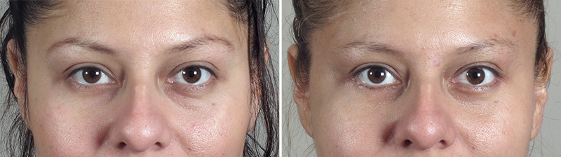 lower eyelid lift in new jersey parker center for plastic surgery