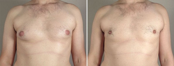 Gynecomastia Reduction Patient 37