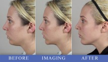 Patients of the Month for October 2012 – Rhinoplasty & Computer Imaging