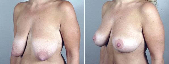 Breast Lift (Vertical Mastopexy Only) Patient 12